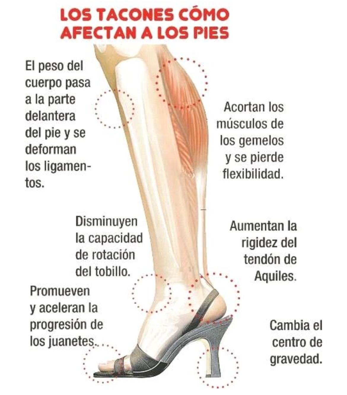 Las lesiones más comunes al caminar con tacones
